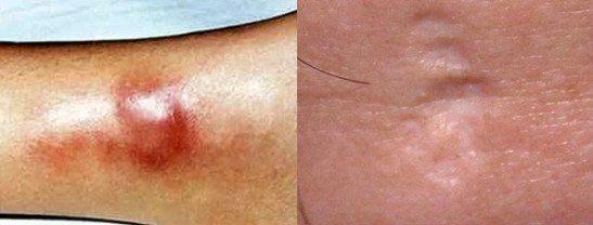 бугорок при третичном сифилисе на конечностях