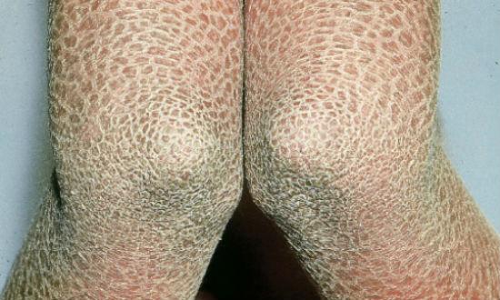 Врожденный ихтиоз кожи
