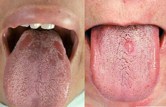 вторичные высыпания сифилиса на языке