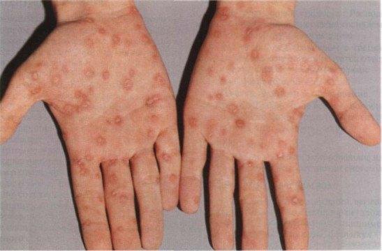 высыпания вторичного сифилиса на кистях