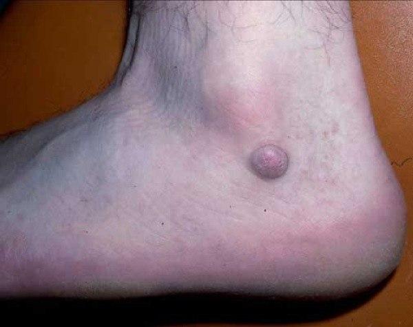 Дерматофиброма на ноге