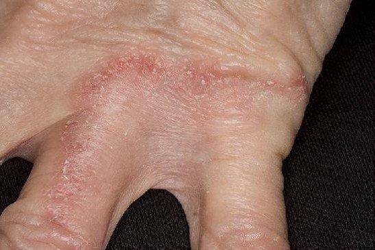 Дерматофития на руках