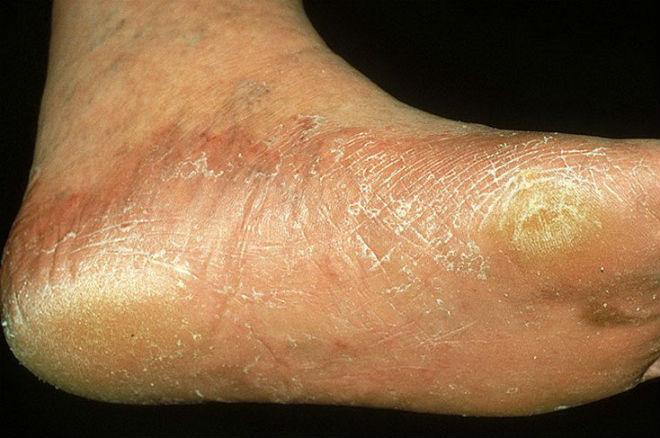 Как лечить грибок стоп на ногах в домашних условиях 322