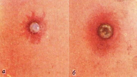 Кожная реакция при прививке от натуральной оспы