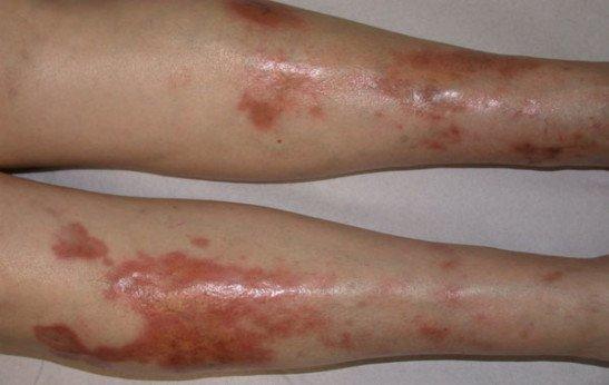 липоидный некробиоз фото и лечение