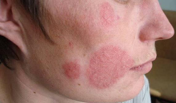 Множественные грибковые поражения на лице