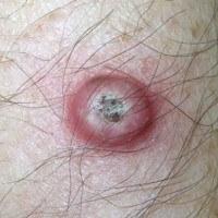 Виразки на шкірі