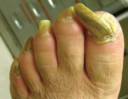 Онихогрифоз ногтей, фото