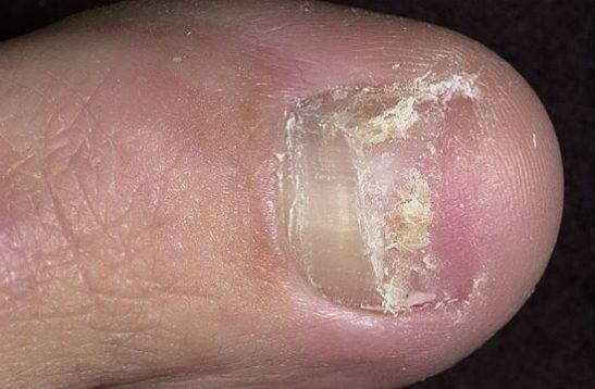 Онихолизис при травме