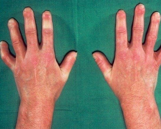 Отек пальцев при склеродермии