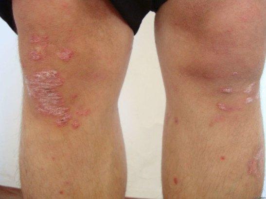 Очаги вульгарного псориаза на коленях