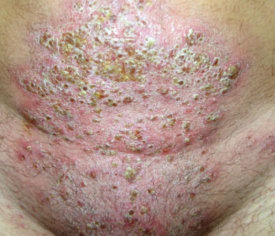 Паховая дерматофития с присоединением гнойной инфекции