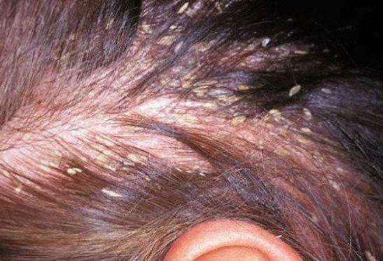 Себорейный дерматит на волосистой части головы