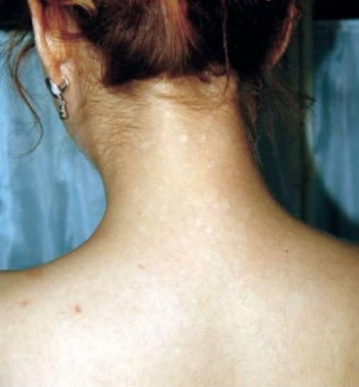 Сифилитическая лейкодерма