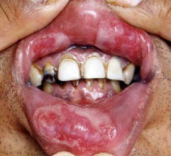 сифилис фото во рту