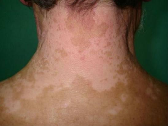 Типичные симптомы витилиго