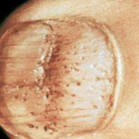 Трахионихия ногтей, фото