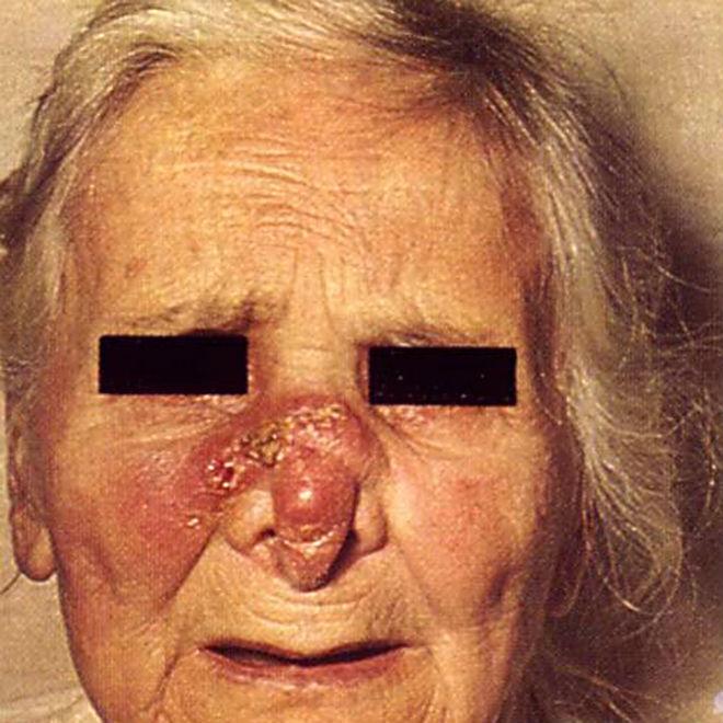 Третичный сифилис: симптомы, лечение, причины