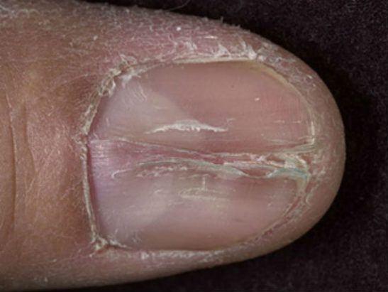 Трещина ногтя