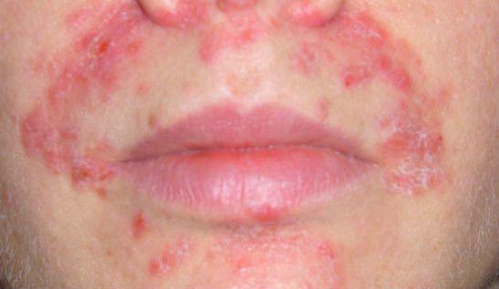 Фискированная токсидермия на лице