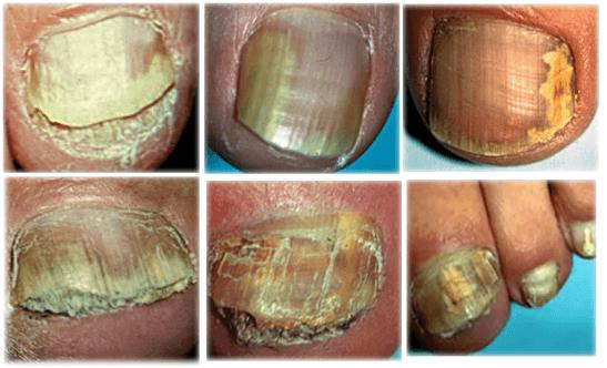 Мицелий на ногтях ног