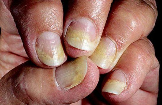 Онихолизис на ногтях рук причины и лечение