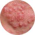 Дерматология — все о болезни кожи