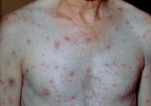 Сыпь на теле при вторичном сифилисе