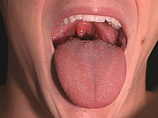 Сыпь во рту от орального секса