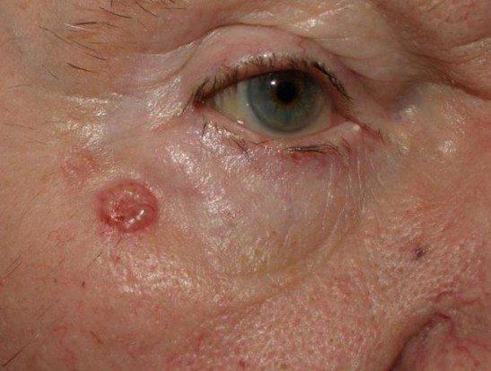 Самая распространенная форма - узелковая базалиома на лице