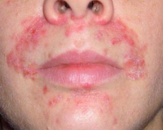 аллергия на холод на лице лечение