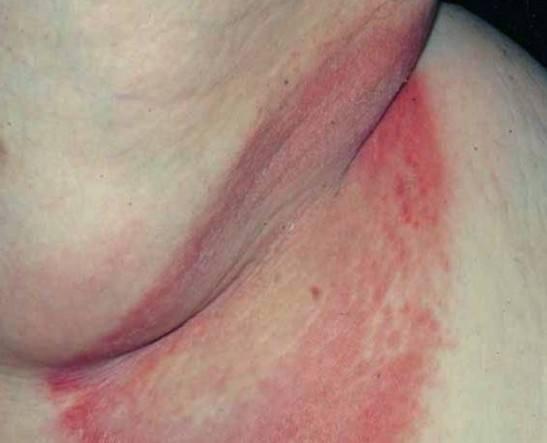 Эритразма воспаленная