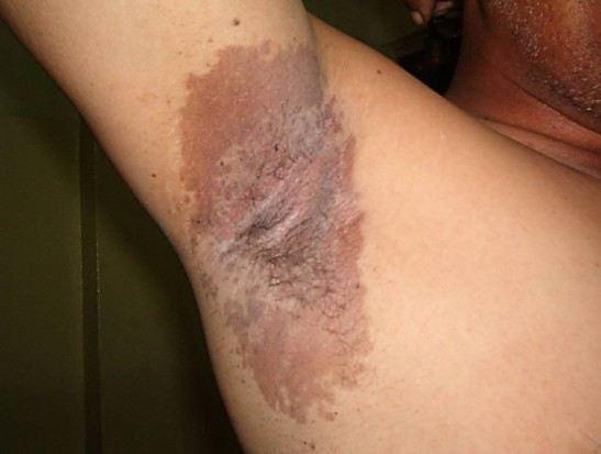Эритразма в области подмышек