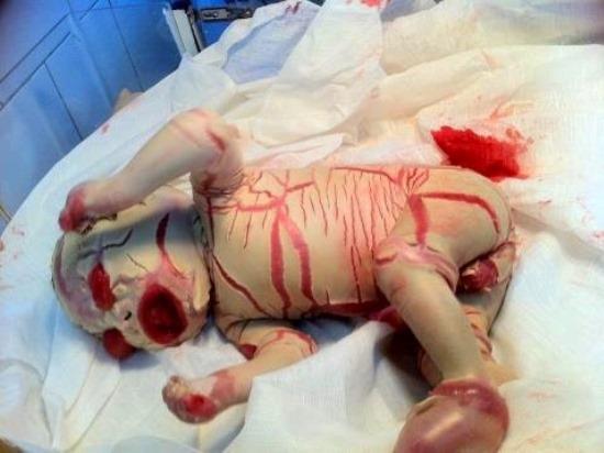 Ихтиоз арлекина фото младенцев
