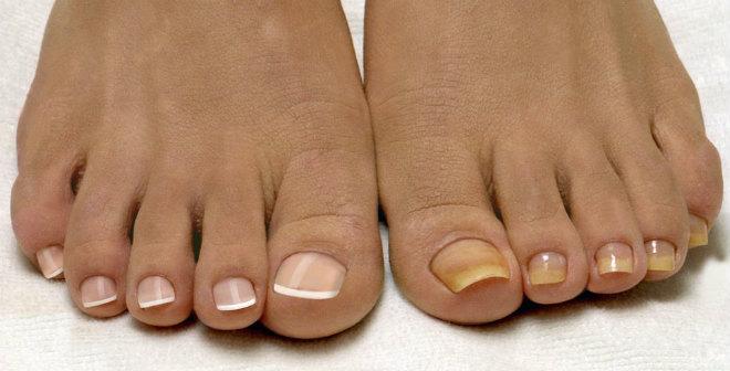 Здоровые ногти ног