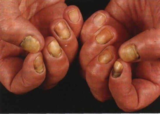 Поврежденные ногти при кандидозе