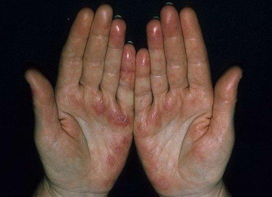 Сыпь на руках при СКВ