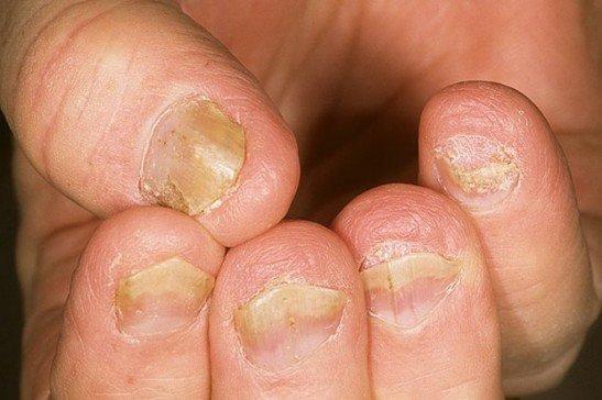 Иногда болезнь дает осложнения на ногти