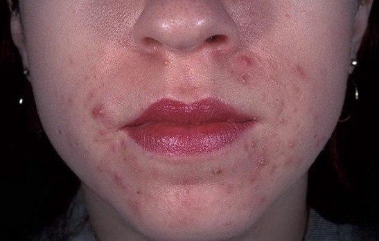 Околоротовый дерматит