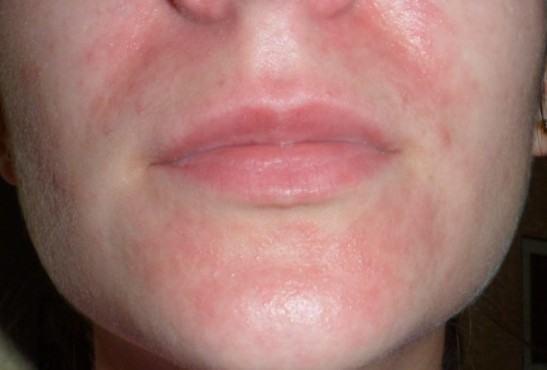 Околоротовый дерматит фото