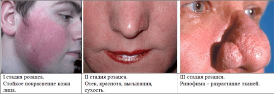 Розацеа: клинические формы