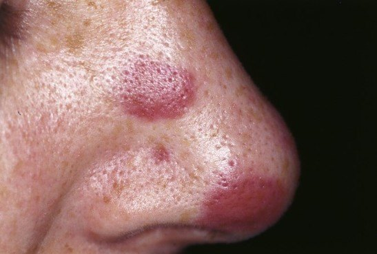 Саркома Капоши на носу