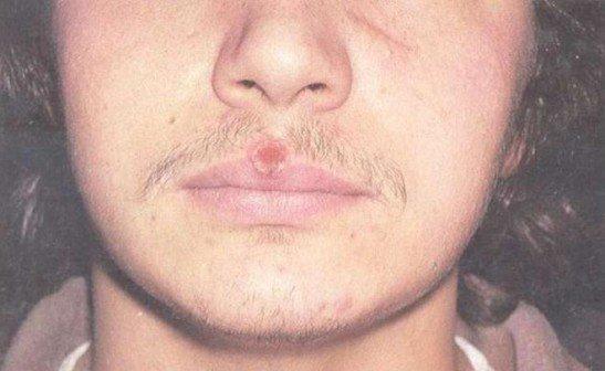 Сифилитический шанкр на губе
