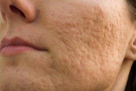 Шрамы после угревой сыпи