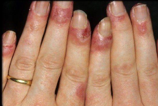 При волчанке может краснеть кожа вокруг ногтей